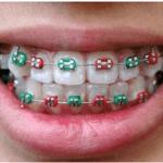 Orthodontics Aren't Just Cosmetics